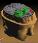 Schizophrenia_PET_scan